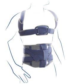 Stāju koriģējoša muguras, krūšu, jostas un krustu daļas ortoze.